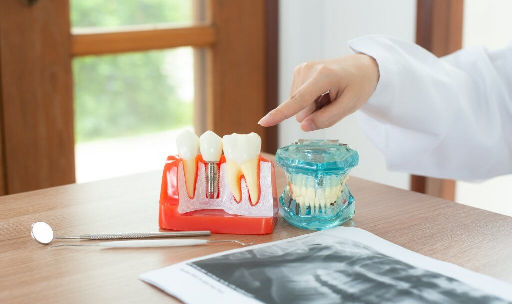 Dentist with dental implant model.